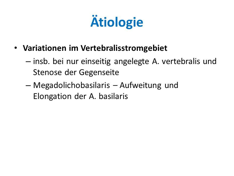 Ätiologie Variationen im Vertebralisstromgebiet – insb. bei nur einseitig angelegte A. vertebralis und Stenose der Gegenseite – Megadolichobasilaris –