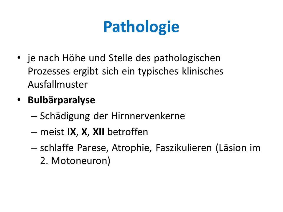 Pathologie je nach Höhe und Stelle des pathologischen Prozesses ergibt sich ein typisches klinisches Ausfallmuster Bulbärparalyse – Schädigung der Hir