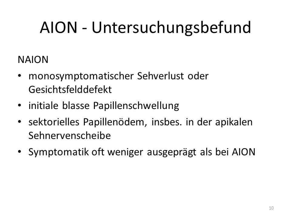 AION - Untersuchungsbefund NAION monosymptomatischer Sehverlust oder Gesichtsfelddefekt initiale blasse Papillenschwellung sektorielles Papillenödem, insbes.