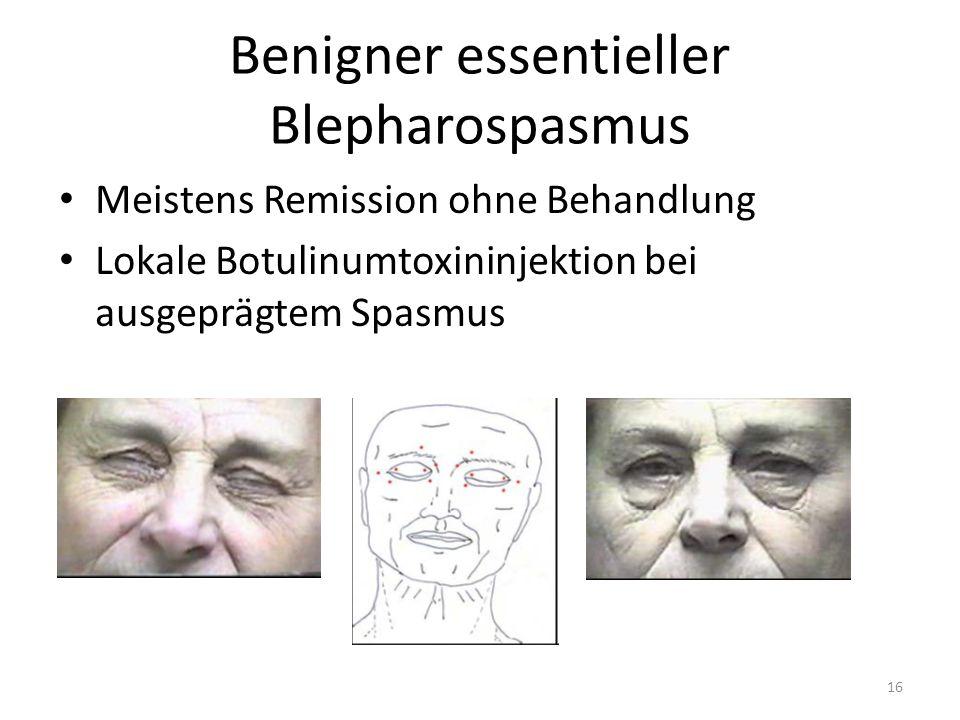 Benigner essentieller Blepharospasmus Meistens Remission ohne Behandlung Lokale Botulinumtoxininjektion bei ausgeprägtem Spasmus 16