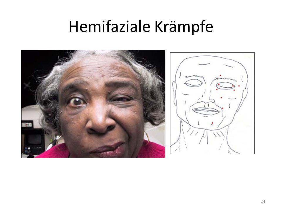 Hemifaziale Krämpfe 24