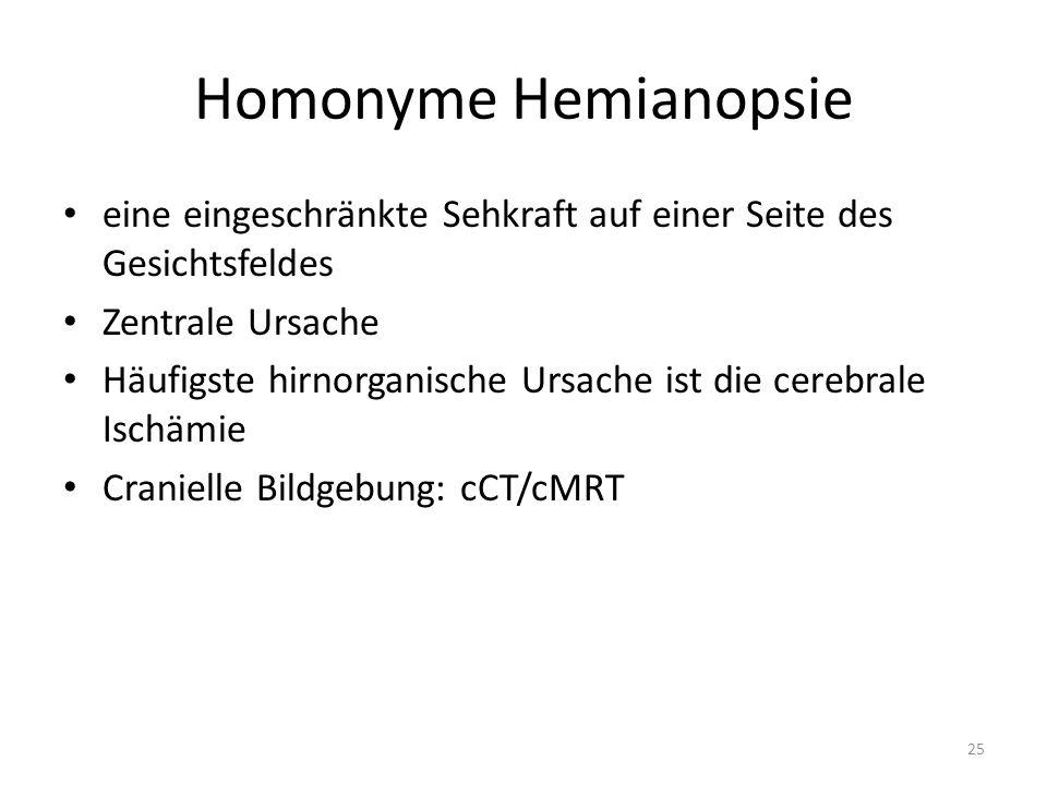 Homonyme Hemianopsie eine eingeschränkte Sehkraft auf einer Seite des Gesichtsfeldes Zentrale Ursache Häufigste hirnorganische Ursache ist die cerebrale Ischämie Cranielle Bildgebung: cCT/cMRT 25