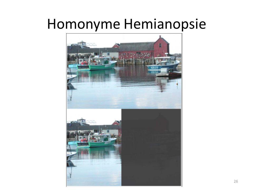 Homonyme Hemianopsie 26