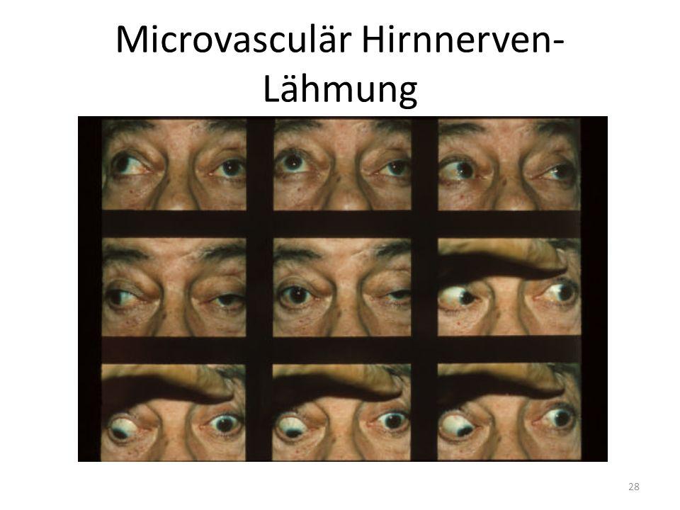 Microvasculär Hirnnerven- Lähmung 28