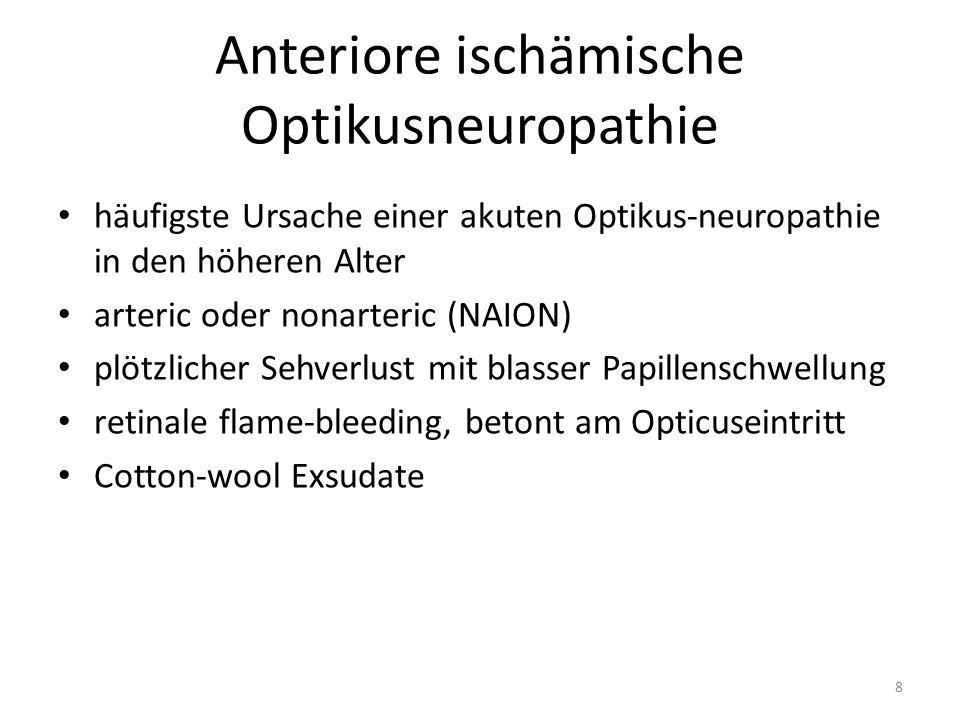 AION - Anamnese Sehverlust ist in 90% schmerzlos oftmals Feststellung nach dem Aufwachen (nächtliche Hypotonie) fakultative Symptome – allgemeines Krankheitsgefühl – Kopfschmerzen – Parästhesien der Kopfhaut – Kiefer-Schmerzen beim Kauen – generalisierte Muskelschmerzen und Schwellungen 9