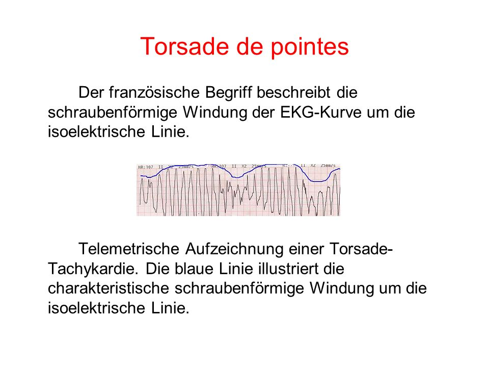 Torsade de pointes Der französische Begriff beschreibt die schraubenförmige Windung der EKG-Kurve um die isoelektrische Linie. Telemetrische Aufzeichn