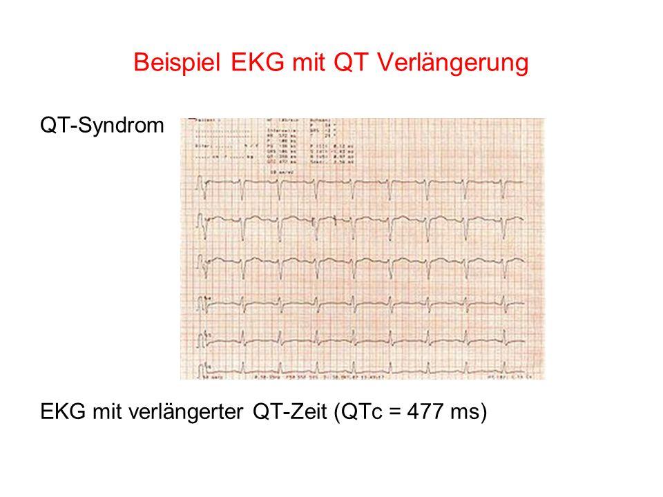 Beispiel EKG mit QT Verlängerung QT-Syndrom EKG mit verlängerter QT-Zeit (QTc = 477 ms)