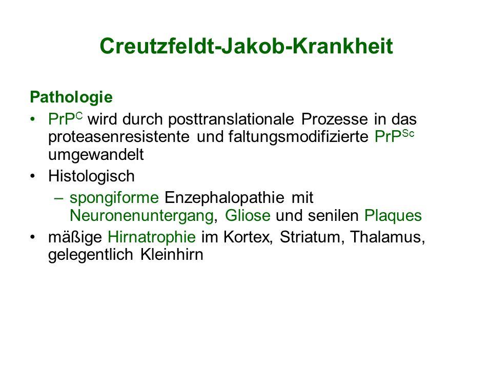 Creutzfeldt-Jakob-Krankheit Pathologie PrP C wird durch posttranslationale Prozesse in das proteasenresistente und faltungsmodifizierte PrP Sc umgewan
