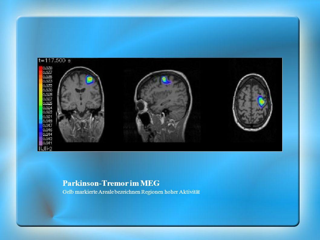 Parkinson-Tremor im MEG Gelb markierte Areale bezeichnen Regionen hoher Aktivität