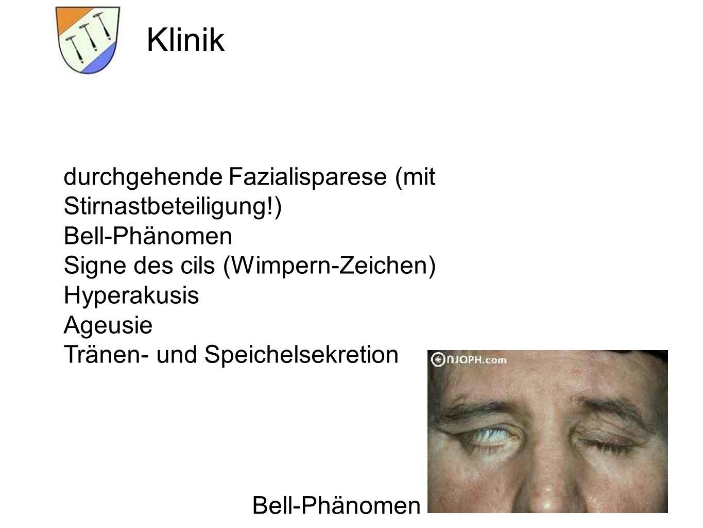 Bell-Phänomen Klinik durchgehende Fazialisparese (mit Stirnastbeteiligung!) Bell-Phänomen Signe des cils (Wimpern-Zeichen) Hyperakusis Ageusie Tränen-