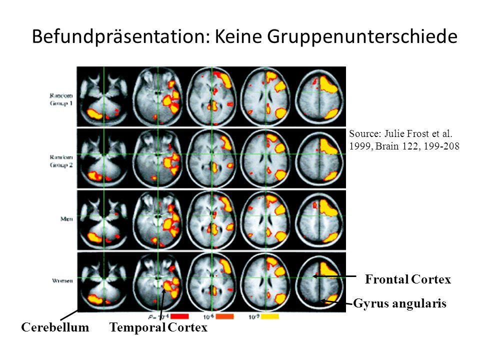Source: Julie Frost et al. 1999, Brain 122, 199-208 Frontal Cortex Gyrus angularis Temporal CortexCerebellum Befundpräsentation: Keine Gruppenuntersch
