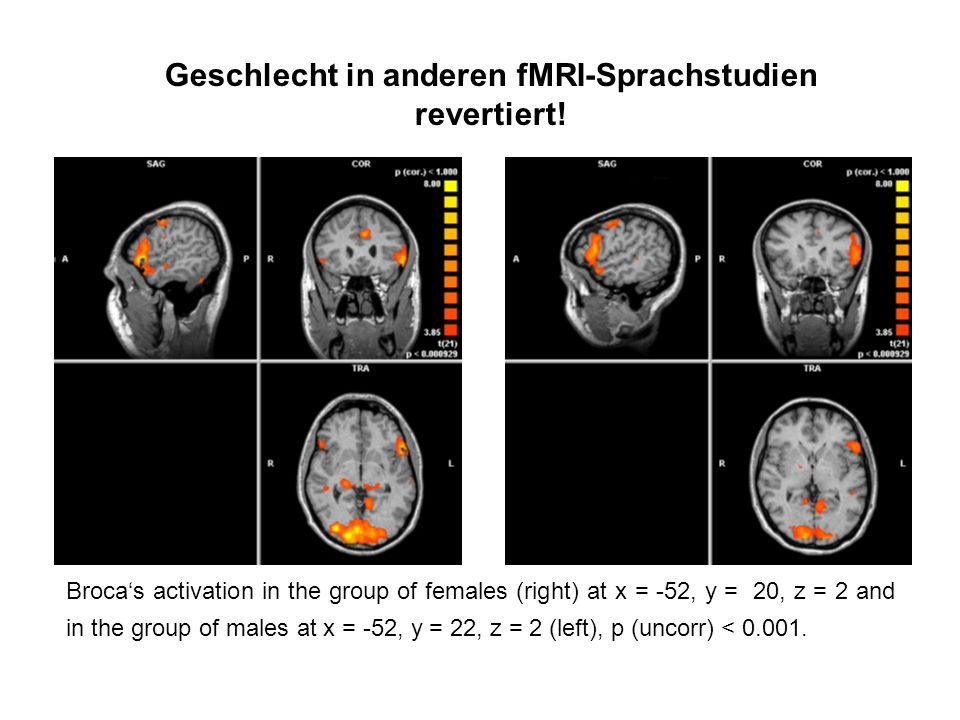 Geschlecht in anderen fMRI-Sprachstudien revertiert! Brocas activation in the group of females (right) at x = -52, y = 20, z = 2 and in the group of m
