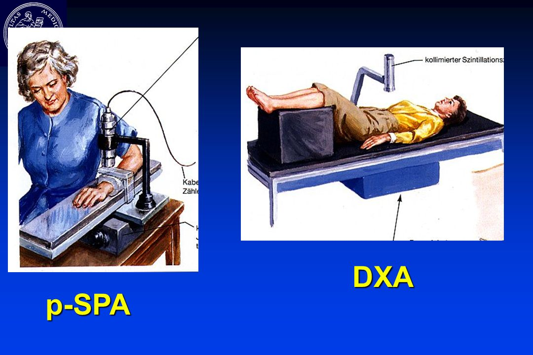 p-SPA DXA
