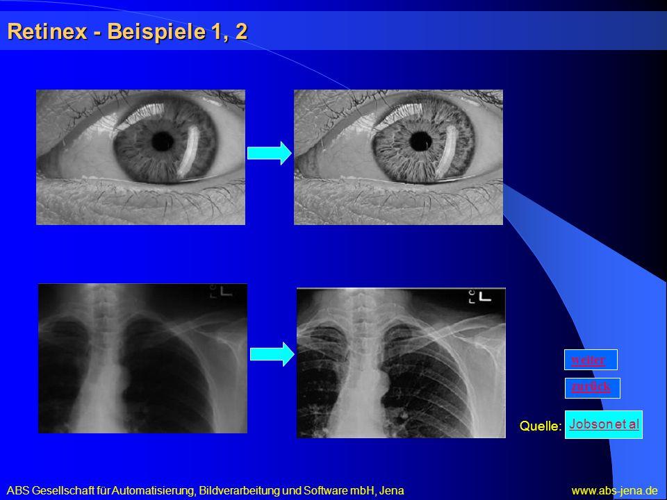 Retinex - Beispiele 1, 2 ABS Gesellschaft für Automatisierung, Bildverarbeitung und Software mbH, Jena www.abs-jena.de Quelle: zurück weiter Jobson et