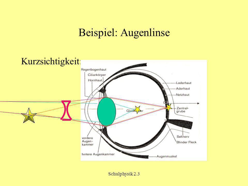 Schulphysik 2.3 Beispiel: Augenlinse Kurzsichtigkeit: