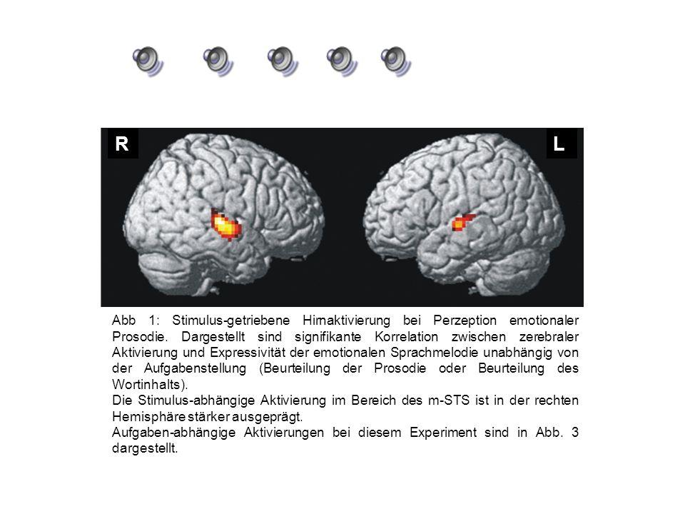RL Abb 1: Stimulus-getriebene Hirnaktivierung bei Perzeption emotionaler Prosodie. Dargestellt sind signifikante Korrelation zwischen zerebraler Aktiv
