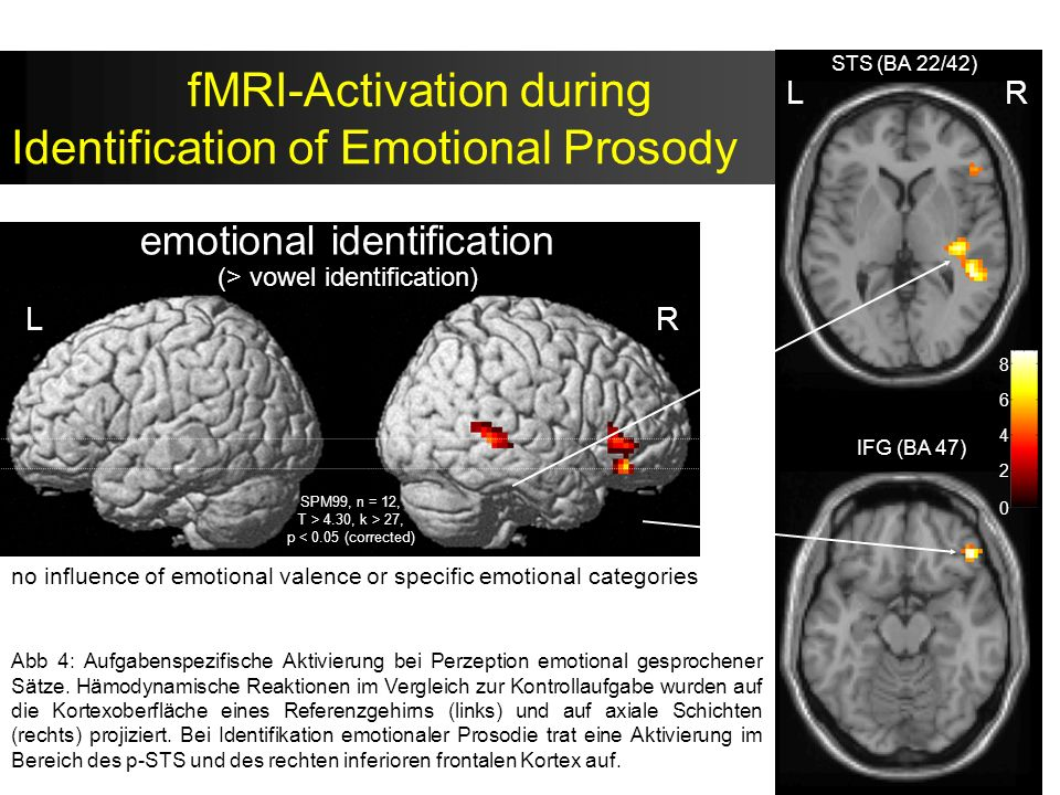 fMRI-Activation during Identification of Emotional Prosody L L L emotional identification (> vowel identification) R IFG (BA 47) STS (BA 22/42) LR 8 6