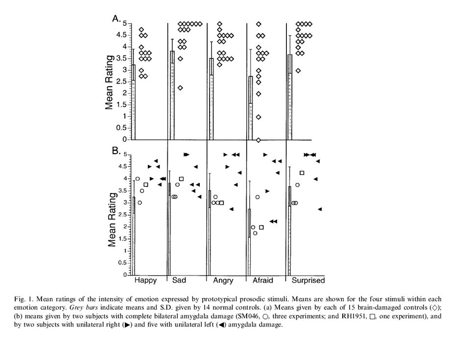 fMRI Studien aus der Wildgruber Gruppe Bestätigen weitgehend das Modell von Ross.
