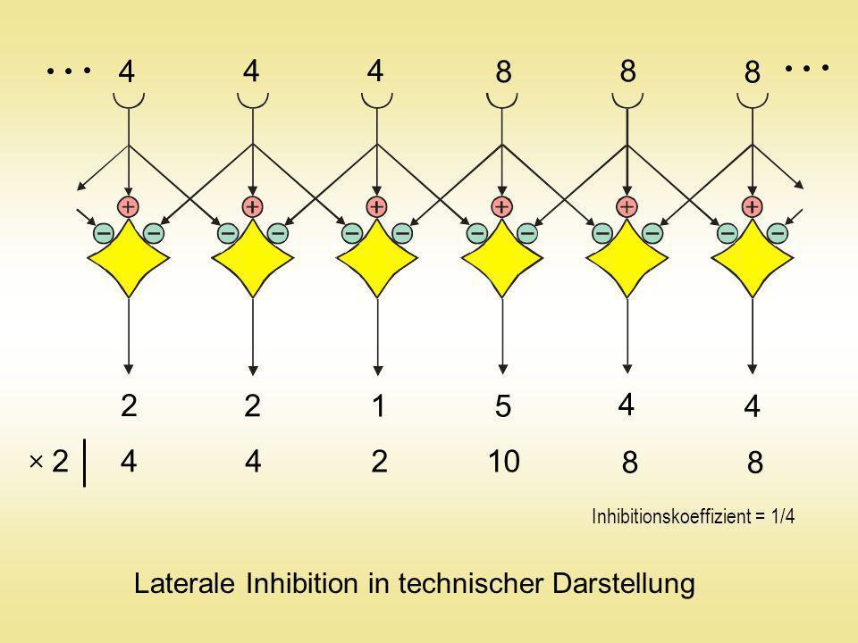 Amakrinzelle Horizontalzelle Ganglienzelle Bipolarzelle Stäbchen Zapfen Querverschaltung der Netzhaut
