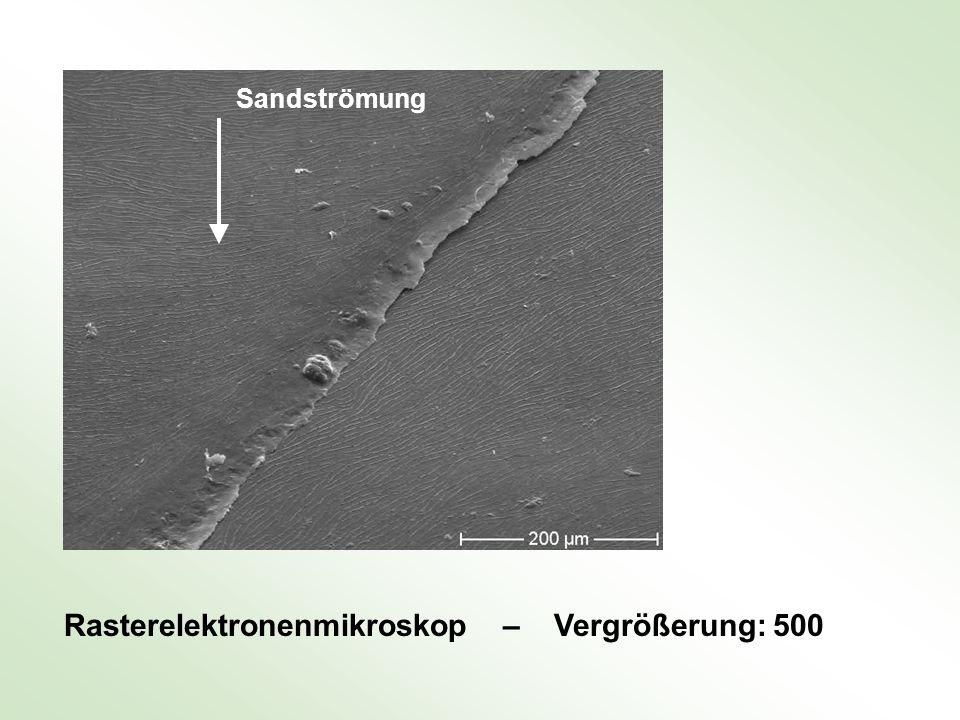 Rasterelektronenmikroskop – Vergrößerung: 500 Sandströmung