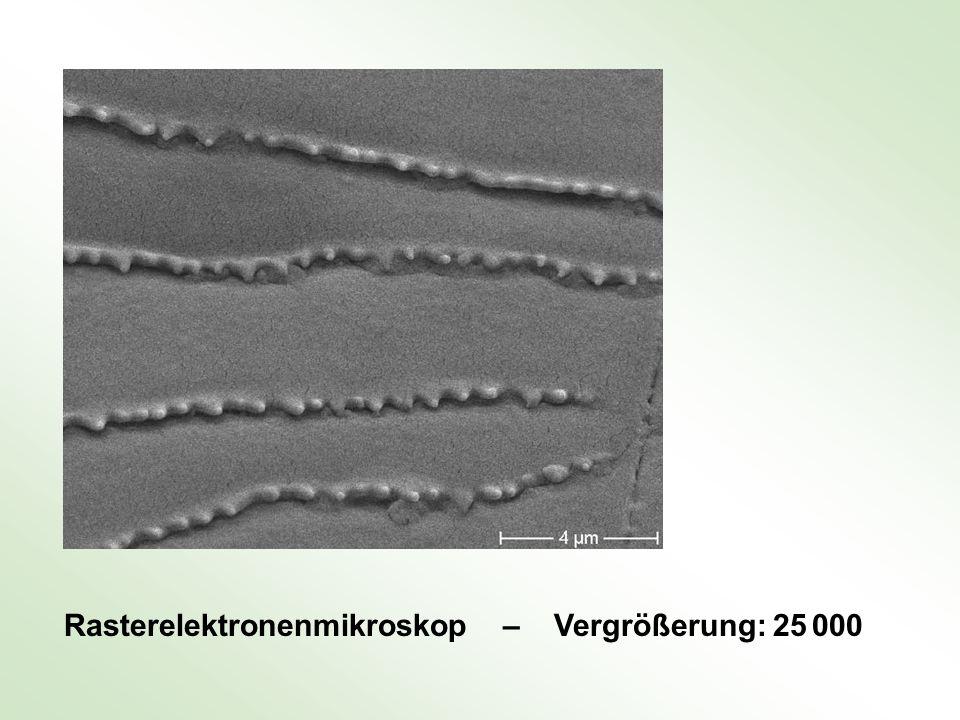 Rasterelektronenmikroskop – Vergrößerung: 25 000
