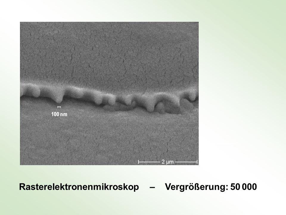 Rasterelektronenmikroskop – Vergrößerung: 50 000 100 nm