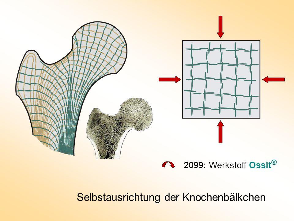 Selbstausrichtung der Knochenbälkchen 2099: Werkstoff Ossit ®