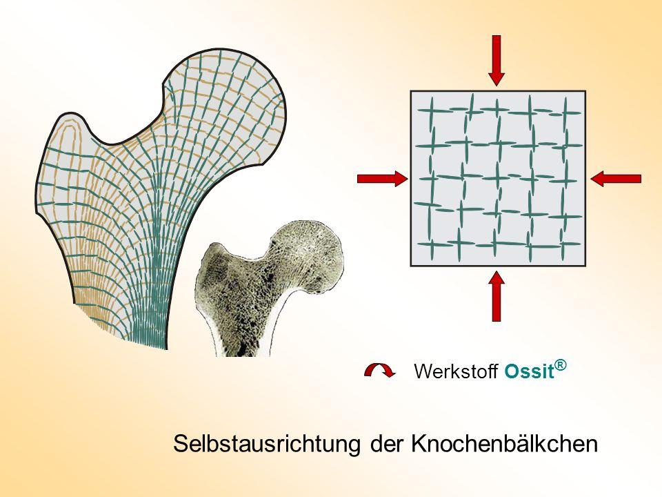Selbstausrichtung der Knochenbälkchen Werkstoff Ossit ®