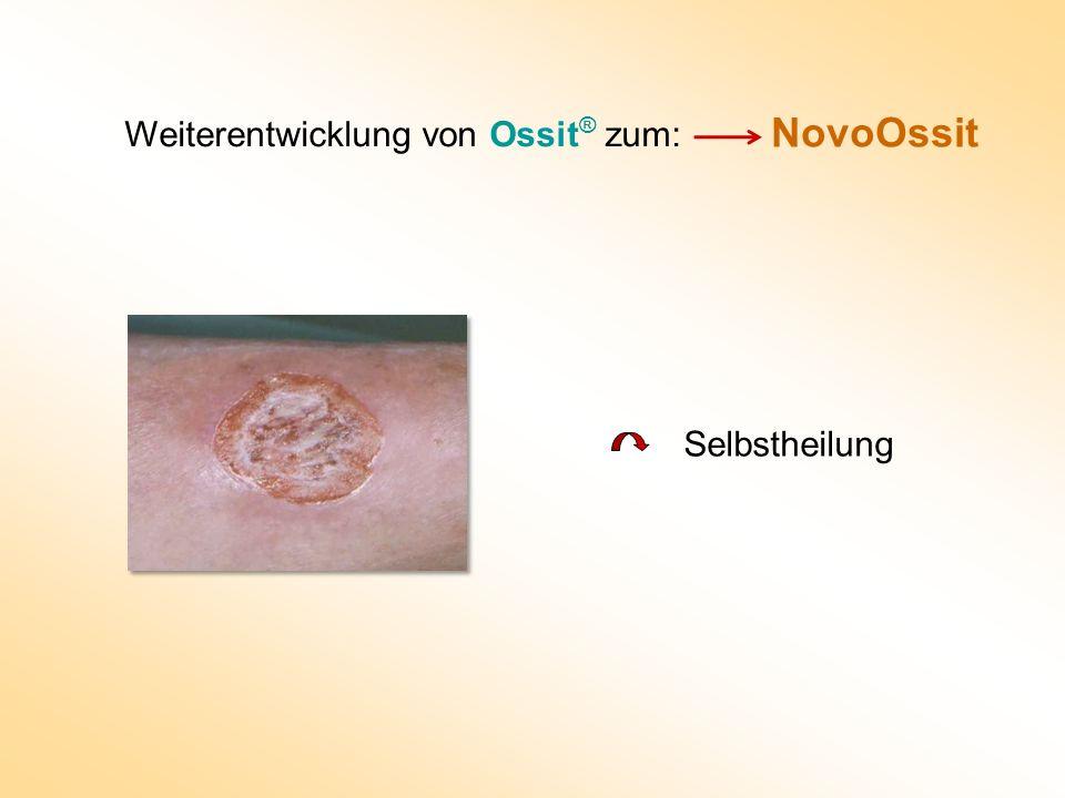NovoOssit Weiterentwicklung von Ossit ® zum: Selbstheilung
