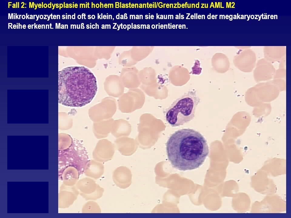Fall 2: Myelodysplasie mit hohem Blastenanteil/Grenzbefund zu AML M2 Mikrokaryozyten sind oft so klein, daß man sie kaum als Zellen der megakaryozytär