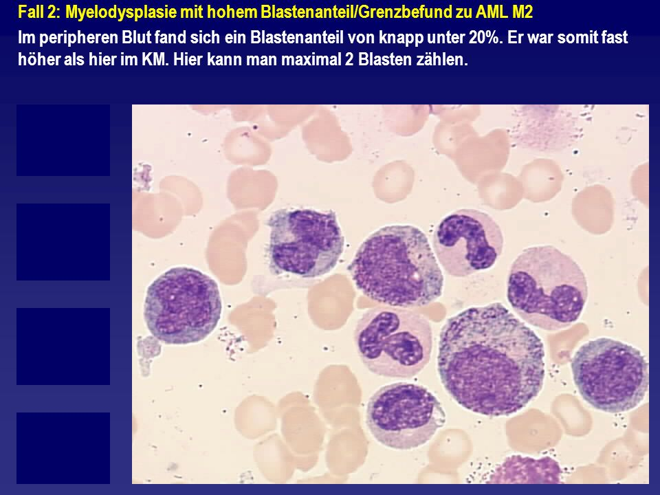 Fall 2: Myelodysplasie mit hohem Blastenanteil/Grenzbefund zu AML M2 Im peripheren Blut fand sich ein Blastenanteil von knapp unter 20%. Er war somit
