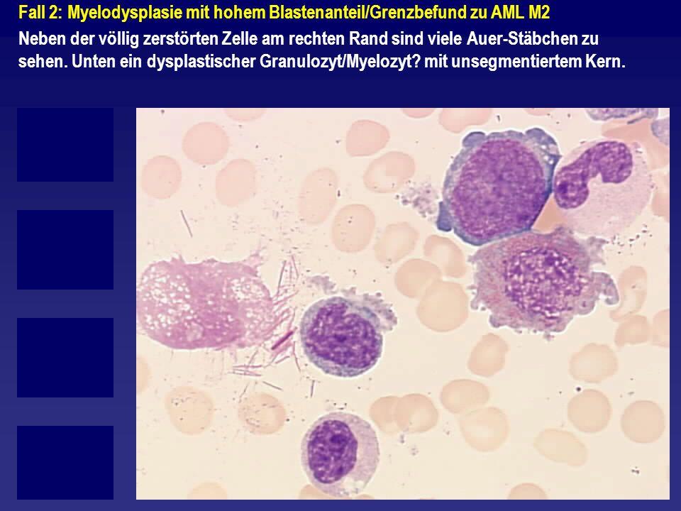Fall 2: Myelodysplasie mit hohem Blastenanteil/Grenzbefund zu AML M2 Neben der völlig zerstörten Zelle am rechten Rand sind viele Auer-Stäbchen zu seh