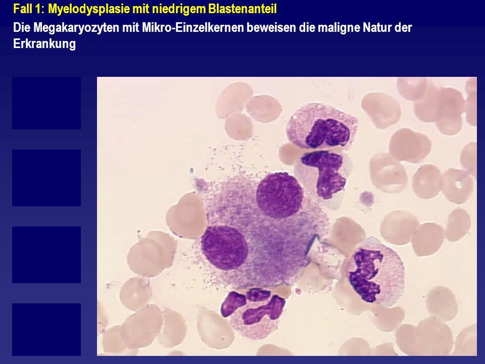 Fall 3: Grenzbefund zwischen RAEB-T und AML M2 Hier finden sich nur 2 (bis 3) Blasten bei 13 intakten Zellen.