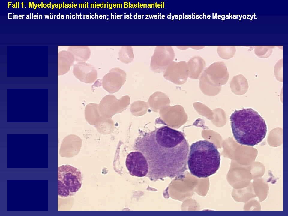 Fall 2: Myelodysplasie mit hohem Blastenanteil/Grenzbefund zu AML M2 Schwere dysplastsiche Ausreifungsstörung der Granulopoese hier auch der frühen Zellformen (siehe oben links).