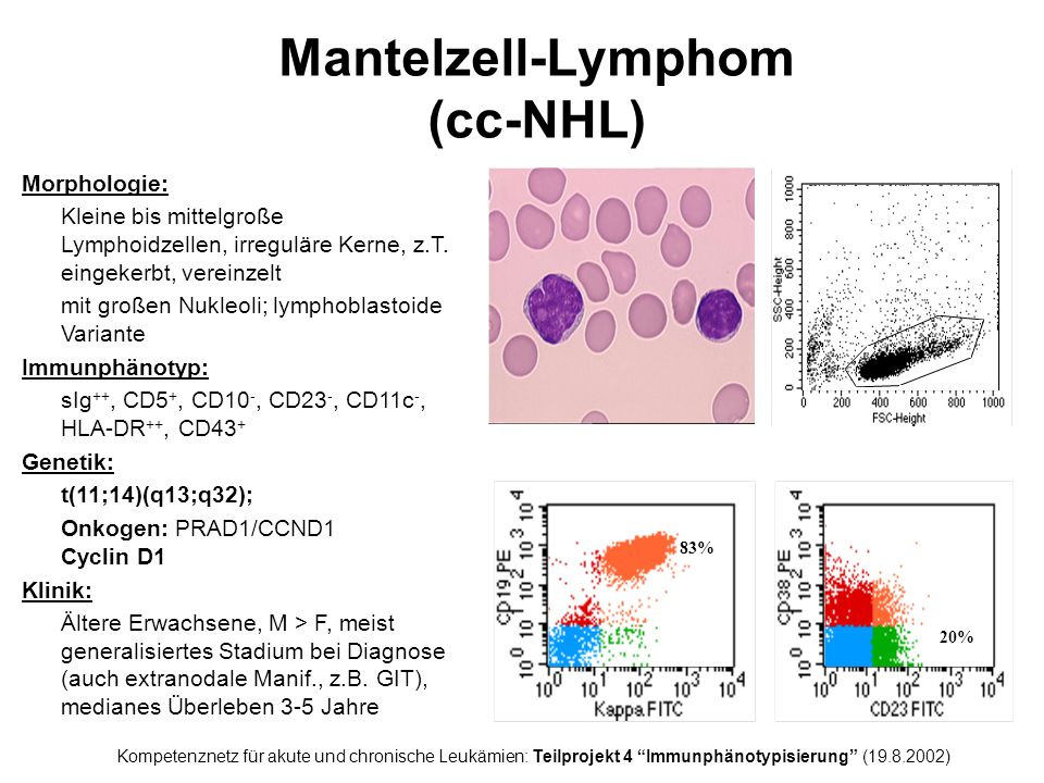 Follikuläres NHL (leukämisch) Morphologie: Heterogene Zellpopulation aus Centrocyten und Centroblasten Immunphänotyp: sIg ++, CD5 -, CD10 +/-, CD23 -/+, CD11c -, HLA-DR ++ Genetik: t(14;18)(q32;q21) mit Rearrangement des bcl-2 Gens Klinik: Erwachsene, F : M = 1 : 1, ca.