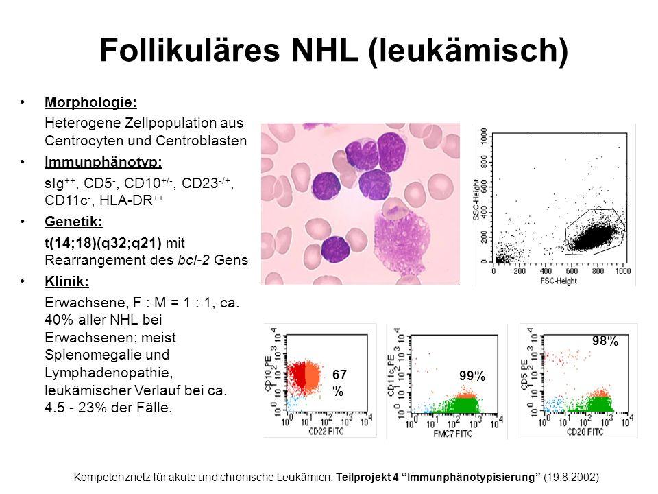 Follikuläres NHL (leukämisch) Morphologie: Heterogene Zellpopulation aus Centrocyten und Centroblasten Immunphänotyp: sIg ++, CD5 -, CD10 +/-, CD23 -/