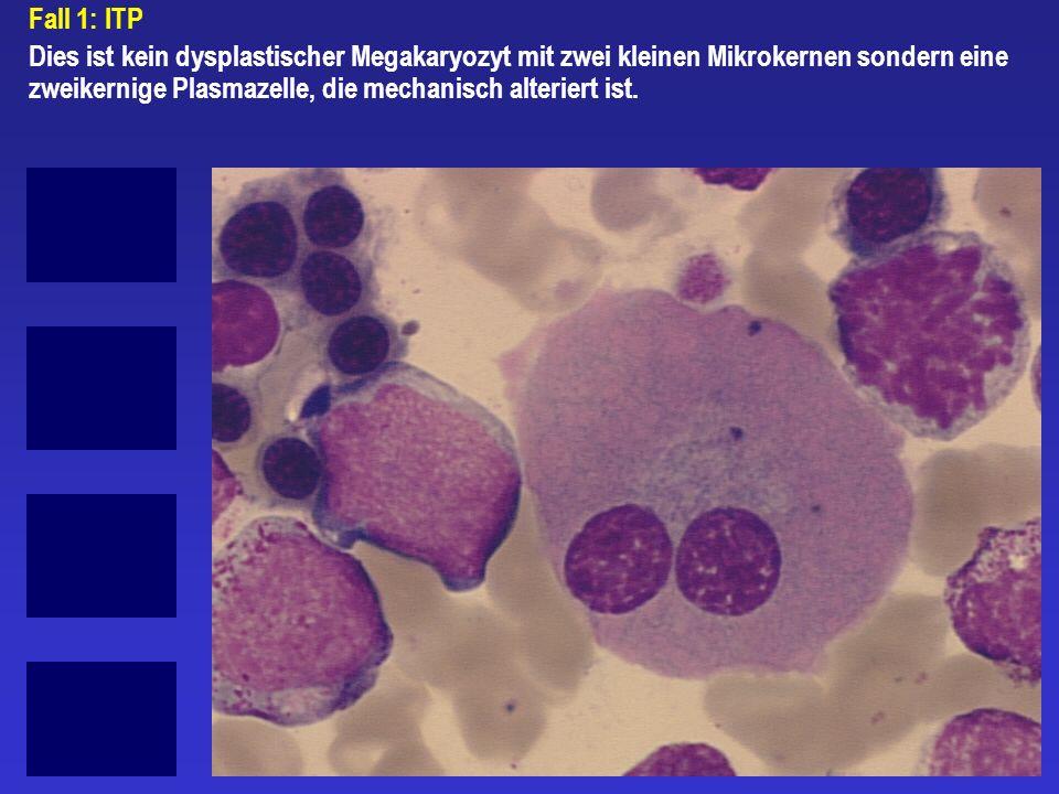 Fall 1: ITP Dies ist kein dysplastischer Megakaryozyt mit zwei kleinen Mikrokernen sondern eine zweikernige Plasmazelle, die mechanisch alteriert ist.