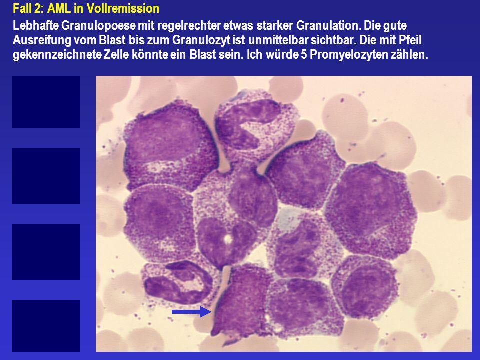 Fall 2: AML in Vollremission Lebhafte Granulopoese mit regelrechter etwas starker Granulation. Die gute Ausreifung vom Blast bis zum Granulozyt ist un
