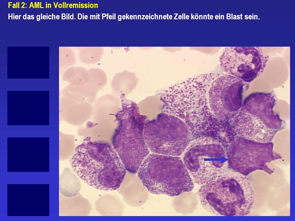 Fall 2: AML in Vollremission Hier das gleiche Bild. Die mit Pfeil gekennzeichnete Zelle könnte ein Blast sein.