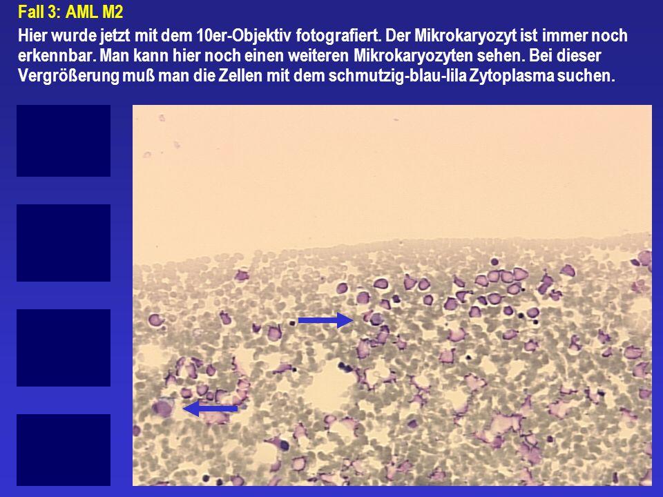 Fall 3: AML M2 Hier wurde jetzt mit dem 10er-Objektiv fotografiert. Der Mikrokaryozyt ist immer noch erkennbar. Man kann hier noch einen weiteren Mikr