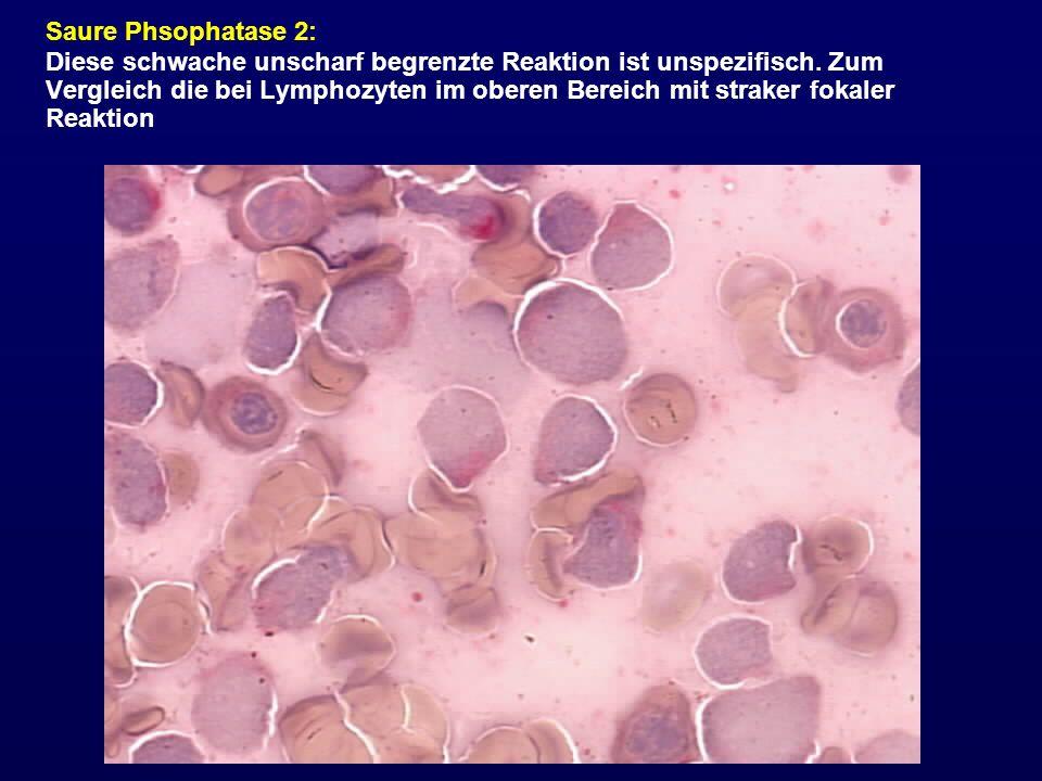 Saure Phsophatase 2: Diese schwache unscharf begrenzte Reaktion ist unspezifisch. Zum Vergleich die bei Lymphozyten im oberen Bereich mit straker foka