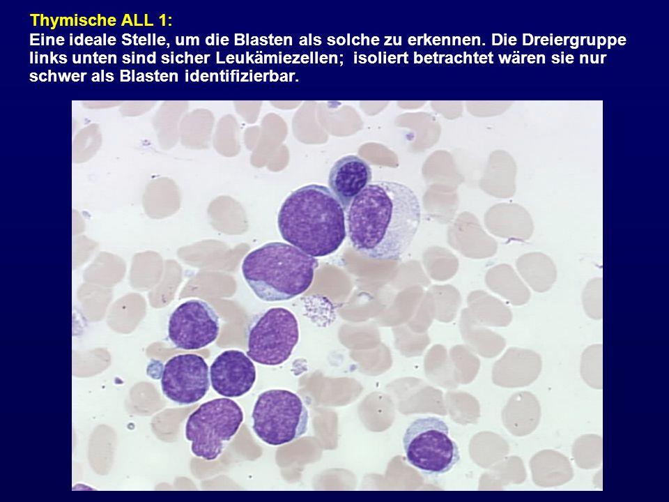 Thymische ALL 1: Eine ideale Stelle, um die Blasten als solche zu erkennen. Die Dreiergruppe links unten sind sicher Leukämiezellen; isoliert betracht