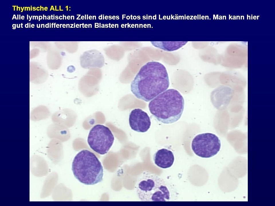 Thymische ALL 1: Alle lymphatischen Zellen dieses Fotos sind Leukämiezellen. Man kann hier gut die undifferenzierten Blasten erkennen.