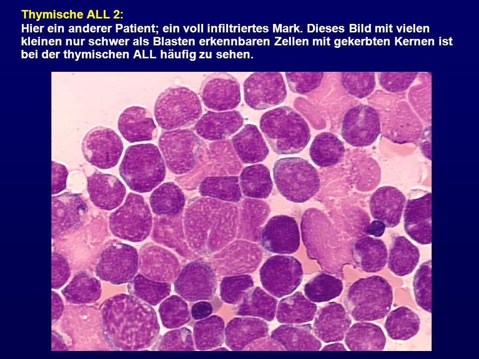 Thymische ALL 2: Hier ein anderer Patient; ein voll infiltriertes Mark. Dieses Bild mit vielen kleinen nur schwer als Blasten erkennbaren Zellen mit g