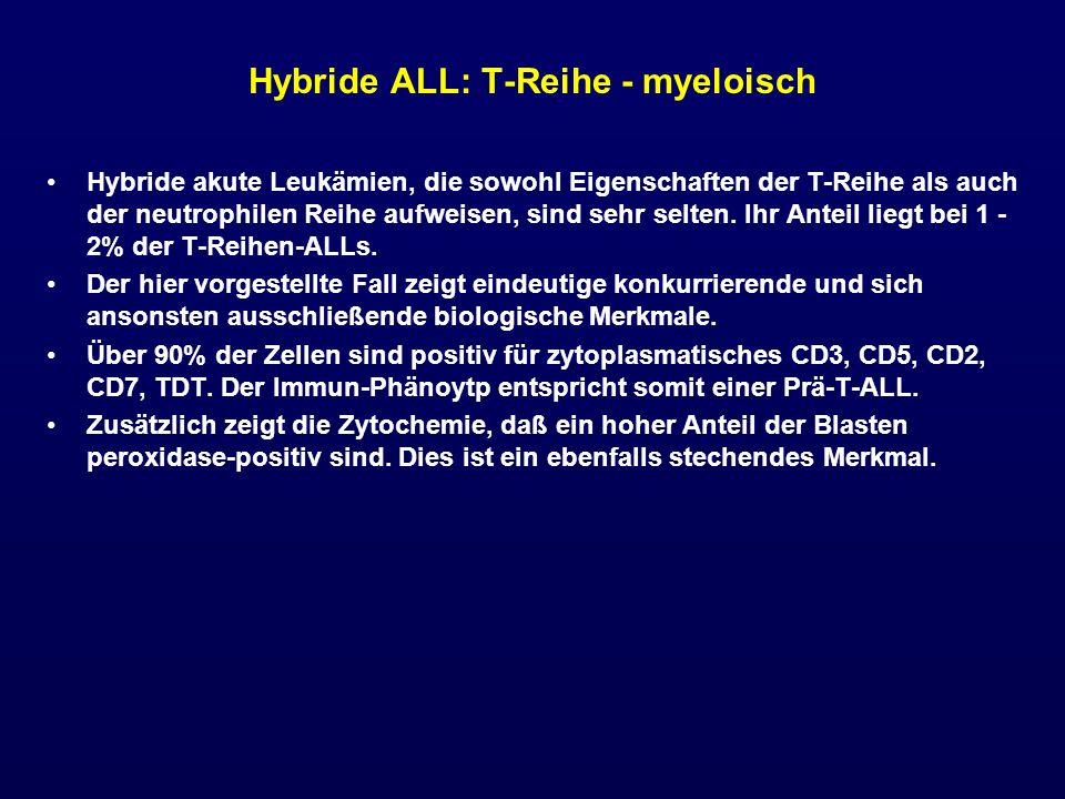 Hybride ALL: T-Reihe - myeloisch Hybride akute Leukämien, die sowohl Eigenschaften der T-Reihe als auch der neutrophilen Reihe aufweisen, sind sehr se