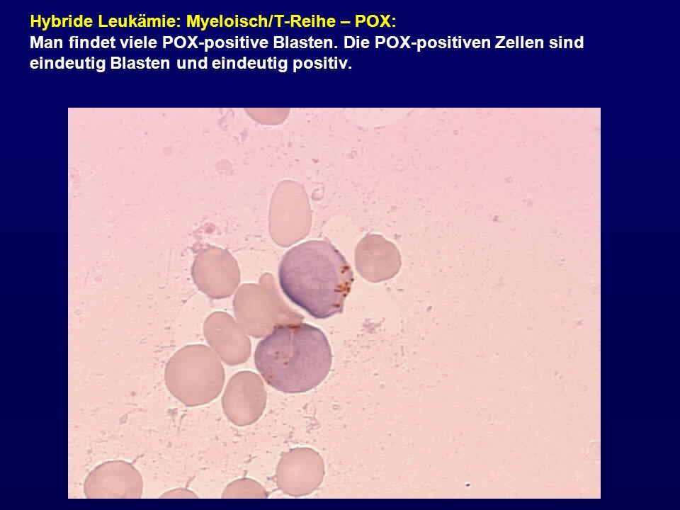 Hybride Leukämie: Myeloisch/T-Reihe – POX: Man findet viele POX-positive Blasten. Die POX-positiven Zellen sind eindeutig Blasten und eindeutig positi