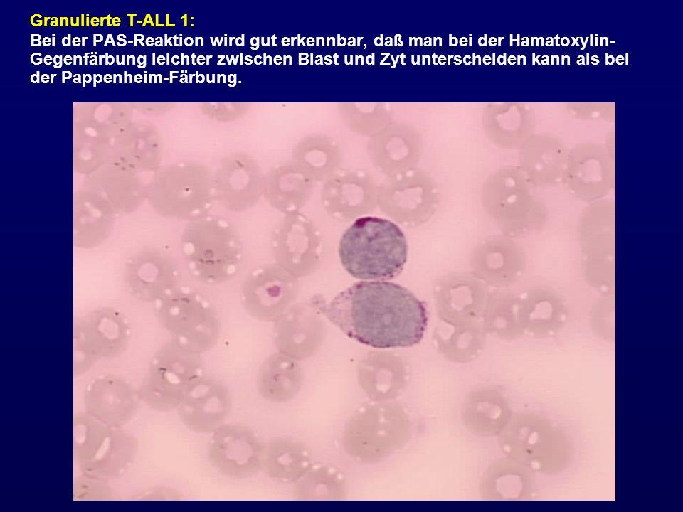 Granulierte T-ALL 1: Bei der PAS-Reaktion wird gut erkennbar, daß man bei der Hamatoxylin- Gegenfärbung leichter zwischen Blast und Zyt unterscheiden