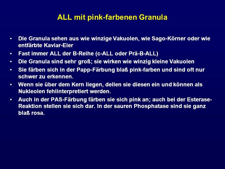 ALL mit pink-farbenen Granula Die Granula sehen aus wie winzige Vakuolen, wie Sago-Körner oder wie entfärbte Kaviar-Eier Fast immer ALL der B-Reihe (c