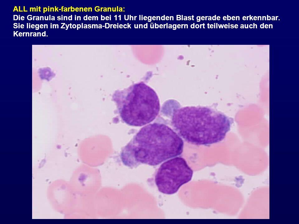 ALL mit pink-farbenen Granula: Die Granula sind in dem bei 11 Uhr liegenden Blast gerade eben erkennbar. Sie liegen im Zytoplasma-Dreieck und überlage