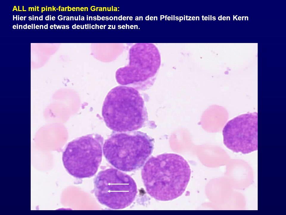 ALL mit pink-farbenen Granula: Hier sind die Granula insbesondere an den Pfeilspitzen teils den Kern eindellend etwas deutlicher zu sehen.